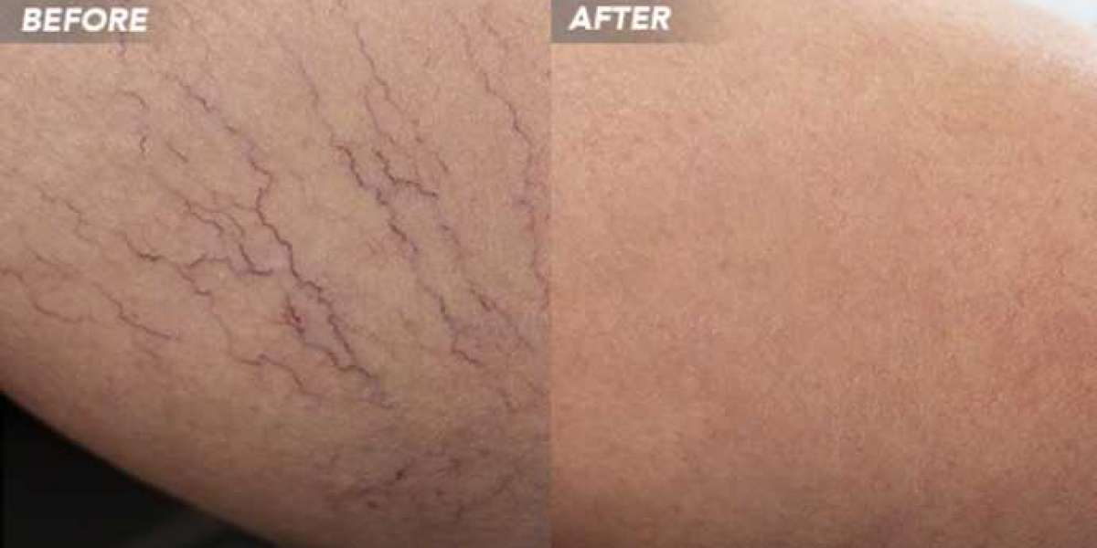 Vein Treatment: Choose The Suitable One For You.