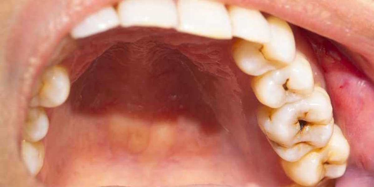 Gingivitis: Things Need To Know.